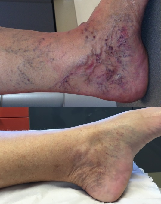 les varices des pieds